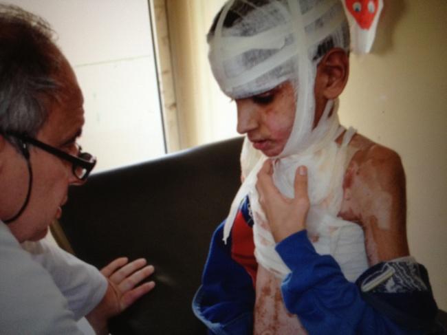 Omar, victime emblématique de l'utilisation des armes chimiques @Frédéric Helbert